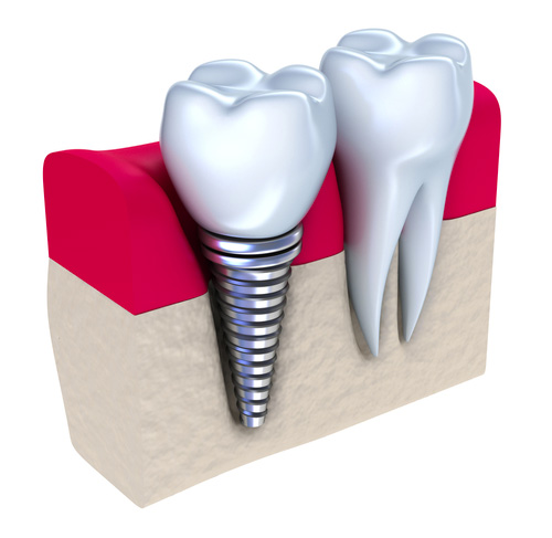 Opciones de restauracion con implante individual