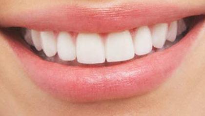 Mejore su sonrisa con los implantes dentales