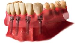 ¿Por qué Prótesis Dentales?
